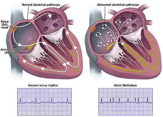Atrial Fibrillation & Normal Heart Beat Rhythms
